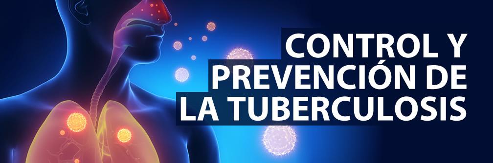 Control y prevención de la tuberculosis